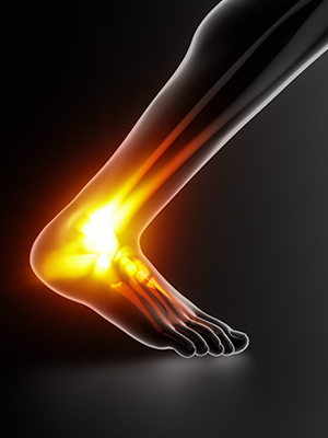 Achilles tendon problems article