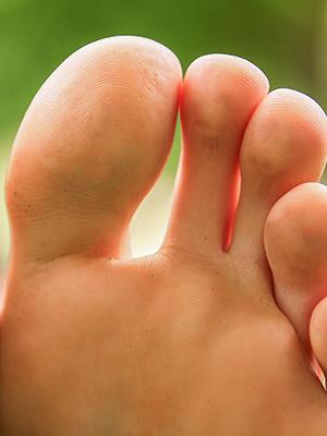 AFAS big toe injuries article